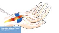 Skizze - Carpal Tunnel Syndrome operation, surgery