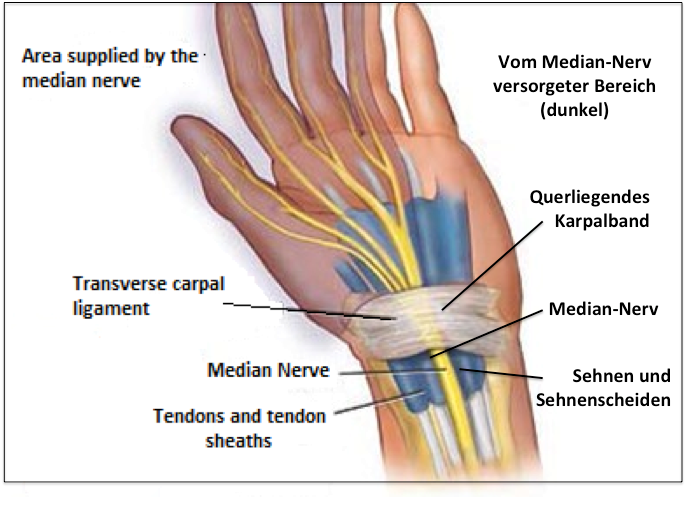 Carpal Tunnel Syndrom (CTS) - CarpaStretch - Karpaltunnelsyndrom ...